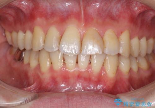 上下前歯のでこぼこをきれいに インビザラインによる歯列矯正の治療中