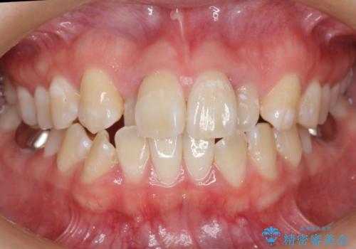 20代女性 前歯のがたがた 後ろに引っ込んでいる歯があるの治療前