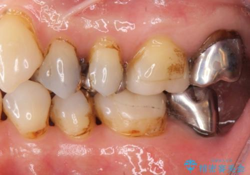 60代女性 銀歯の下が虫歯 隣も虫歯の治療前