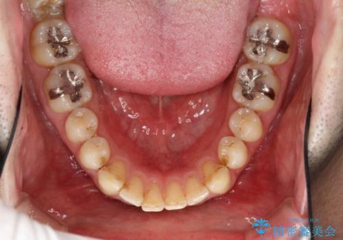 インビザラインによる矯正治療と銀歯の審美治療の治療前