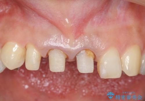 前歯をメタルフリーに オールセラミッククラウンの治療中