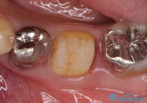 ゴールド(PGA)クラウン 虫歯治療の治療中