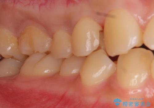 上の奥歯 深い樹脂のつめもののやりかえの治療中