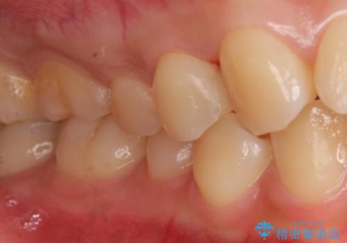 上の奥歯 深い樹脂のつめもののやりかえの治療後