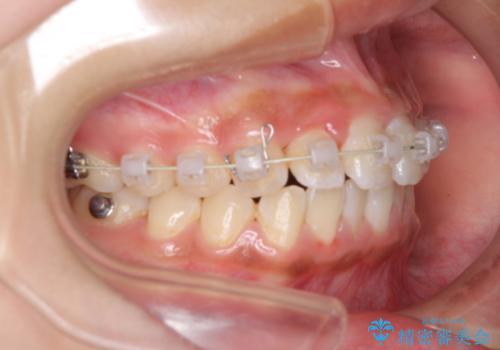 ワイヤー矯正とマウスピース矯正を併用して、短期間で歯列矯正の治療中