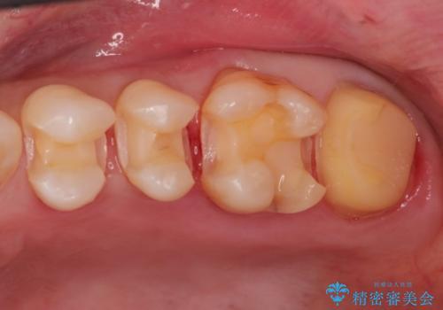 金属→セラミックへのやり直し 予想以上に深い虫歯とその処置の治療中