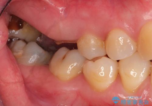 インプラントと部分矯正による奥歯のかみ合わせの改善の症例 治療前