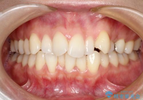 出っ歯を治したい メタル装置による抜歯矯正の症例 治療前