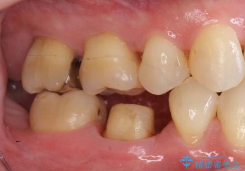 30代女性 総合歯科治療 矯正+セラミック+根管治療 の治療中