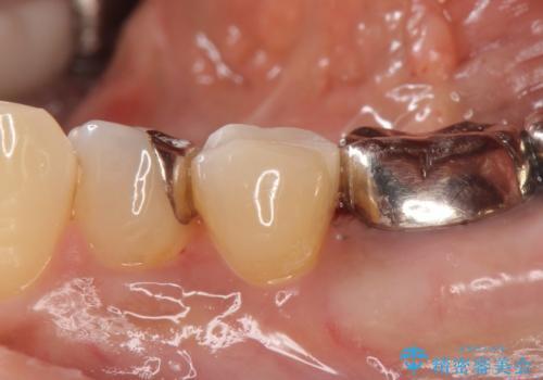 セラミックインレー しみる銀歯の治療の治療後