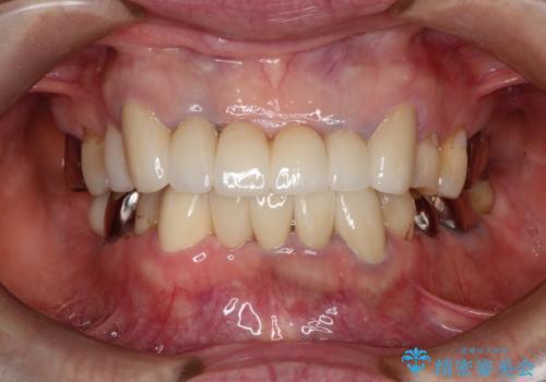 歯が割れた 抜歯をしてブリッジによる治療の症例 治療後