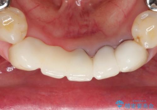 歯が割れた 抜歯をしてブリッジによる治療の治療後
