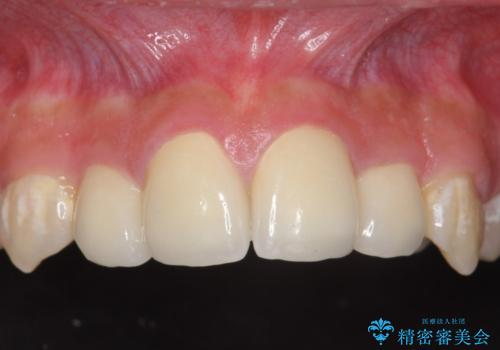 オールセラミッククラウン 前歯の補綴の治療後