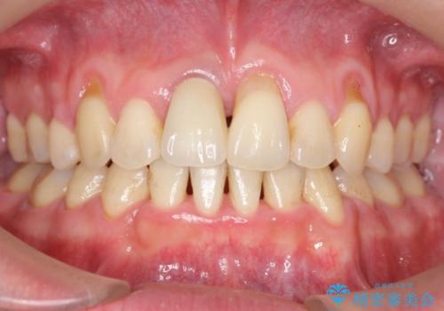変色した前歯をセラミックにの治療後
