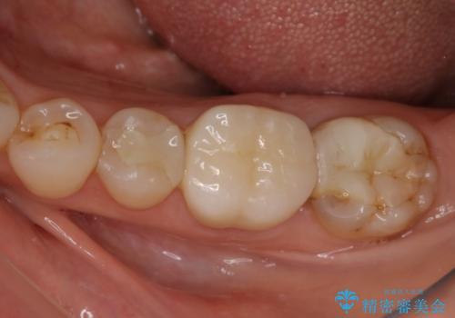 割れた奥歯の再修復 土台からの治療の治療後