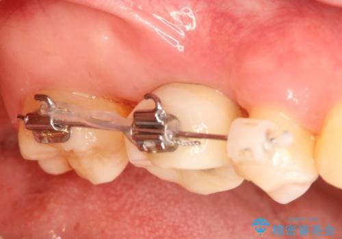 インプラントと部分矯正による奥歯のかみ合わせの改善の治療中