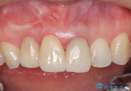 変色した前歯 オールセラミッククラウンの症例 治療後