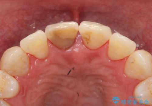変色した前歯をセラミックにの治療前
