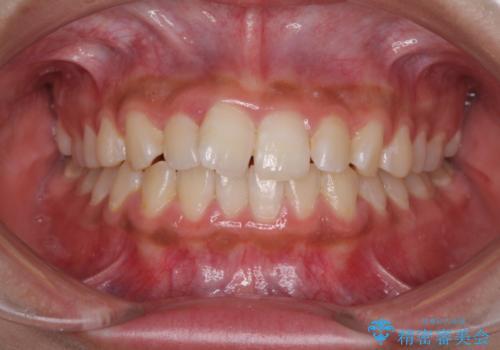 ワイヤー矯正とマウスピース矯正を併用して、短期間で歯列矯正の症例 治療前