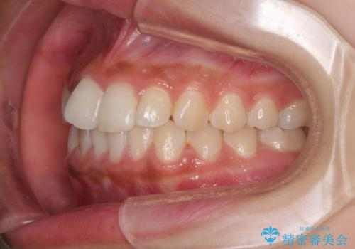 ワイヤー矯正とマウスピース矯正を併用して、短期間で歯列矯正の治療前