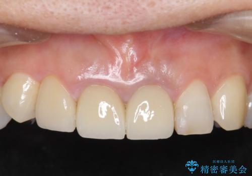 前歯をメタルフリーに オールセラミッククラウンの治療後