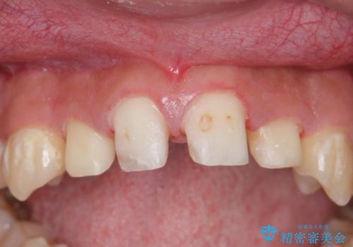 オールセラミッククラウン 前歯の補綴の治療中