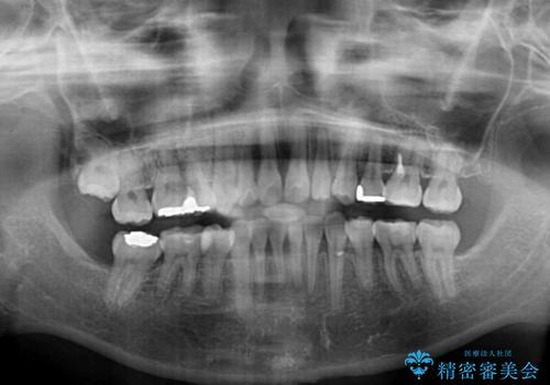 出っ歯を治したい メタル装置による抜歯矯正の治療後