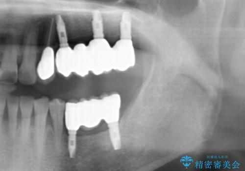インプラントによる咬合機能回復の治療後