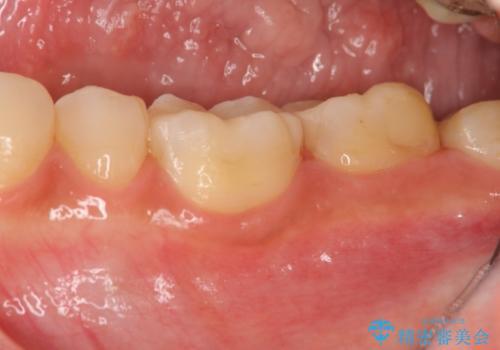 顕微鏡を用いた神経を残す虫歯治療の治療後