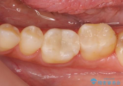 顕微鏡を用いた神経を残す虫歯治療の症例 治療後