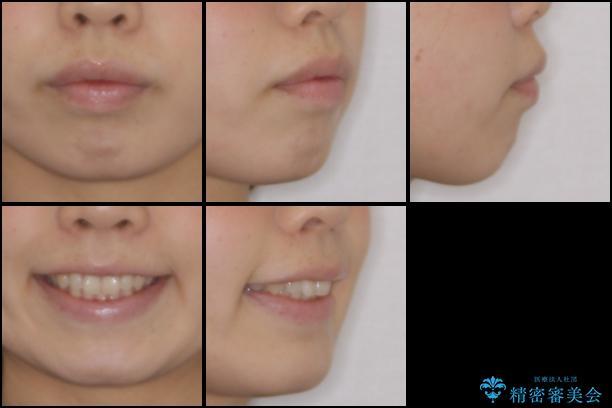 出ている前歯を引っ込めたい インビザラインによる矯正治療の治療前(顔貌)