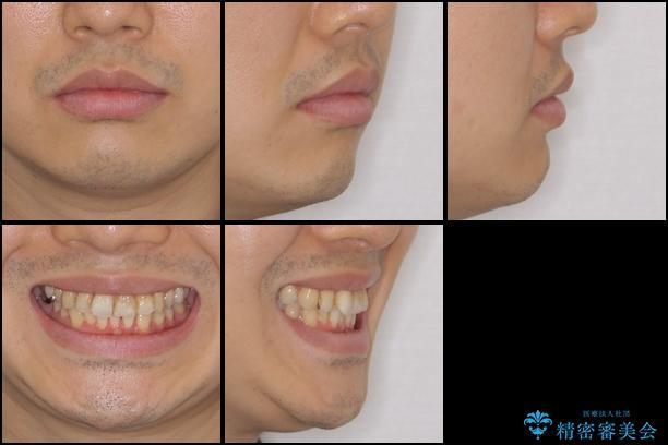 上下前歯のでこぼこをきれいに インビザラインによる歯列矯正の治療前(顔貌)