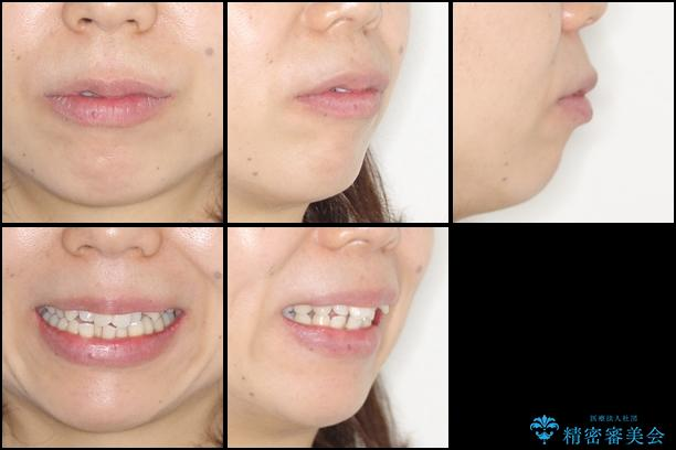 出っ歯を治したい メタル装置による抜歯矯正の治療前(顔貌)