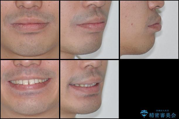インビザラインによる矯正治療と銀歯の審美治療の治療前(顔貌)
