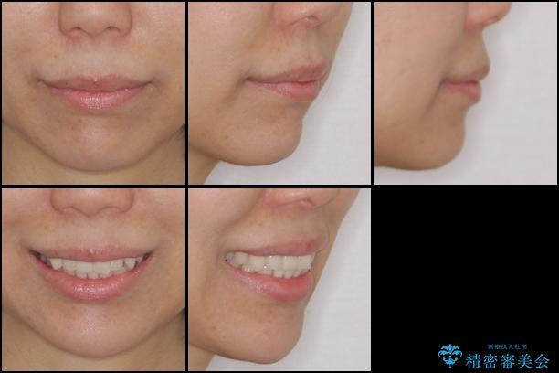 インビザラインによる再矯正治療の治療前(顔貌)