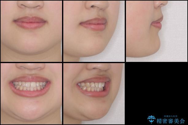 ワイヤー矯正とマウスピース矯正を併用して、短期間で歯列矯正の治療前(顔貌)
