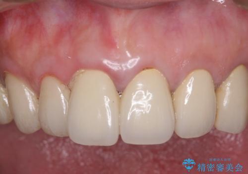 虫歯だらけの口腔内 全顎治療の治療前