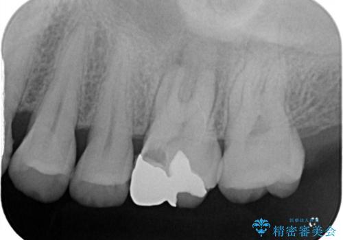 ぷくっと腫れた歯肉が気になる 根管治療とセラミックの治療前