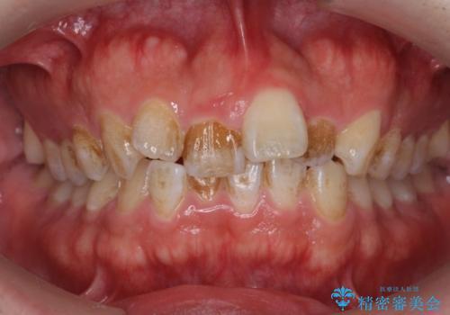 タバコのヤニを除去してつるつるの歯面への治療前