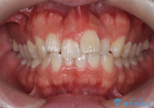 タバコのヤニを除去してつるつるの歯面への治療後