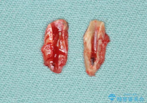 [歯牙破折]  歯槽堤保存術を応用した上顎前歯ブリッジの治療中