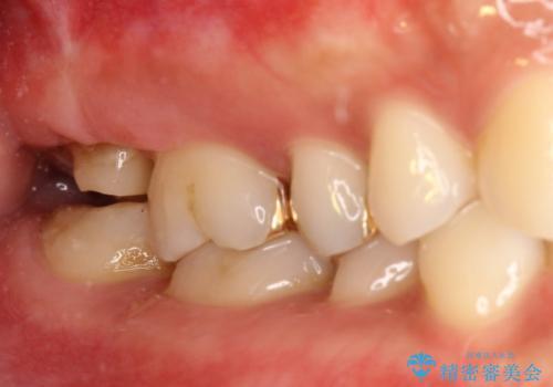 咬んだ時の痛みを訴え→根管治療の見直しと、その後の被せものの処置の治療中