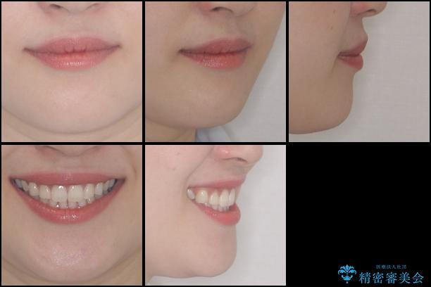 抜歯矯正の後戻りをインビザラインできれいにの治療後(顔貌)
