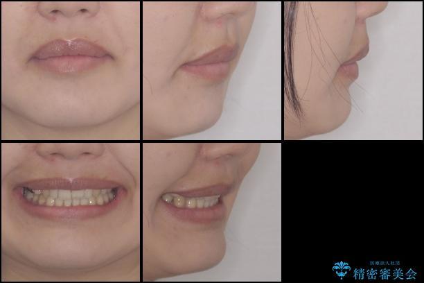 上の前歯の出っ歯を抜歯矯正で改善の治療後(顔貌)