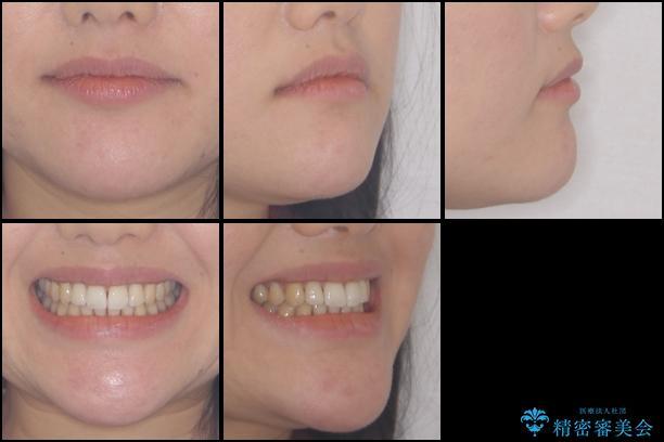 前歯のでこぼこを改善 インビザラインによる矯正治療の治療後(顔貌)