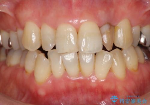 前歯の色変化 セラミッククラウンによる審美性の改善の治療前
