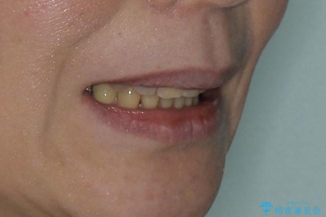 重度の不正咬合 Cl.Ⅱ div.2 を表のワイヤー矯正で綺麗に!の治療後(顔貌)