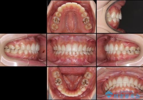 抜歯矯正の後戻りをインビザラインできれいにの治療後