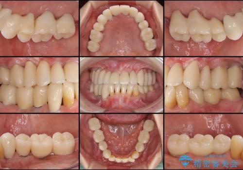 どんなに歯を磨いても治らない 重度歯周病患者の治療の治療後