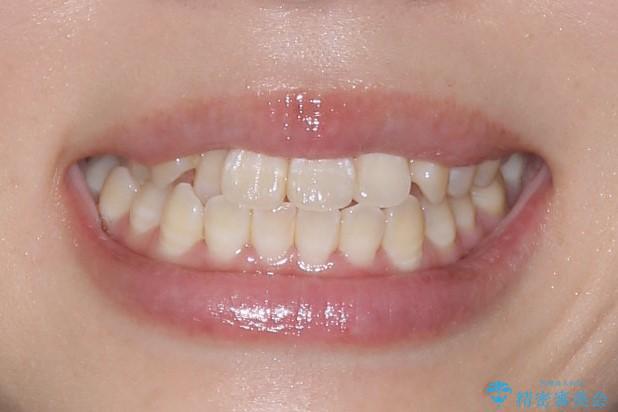 インビザラインによるガタつきの治療 クロスバイトの改善の治療前(顔貌)
